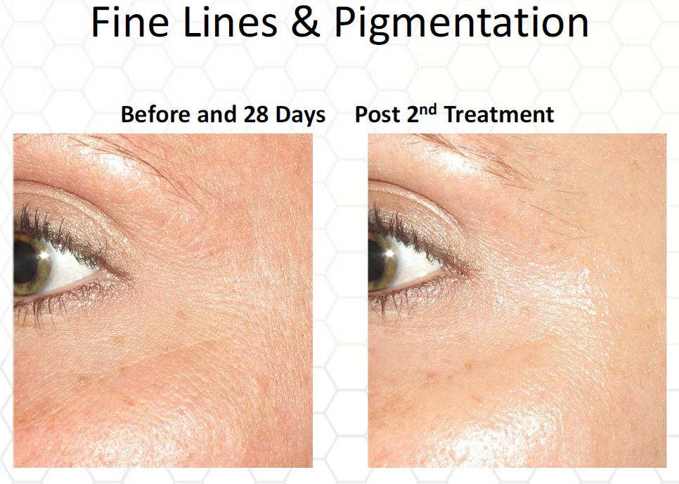 Collagen PIN Micro-Needling - Center for Cosmetic and