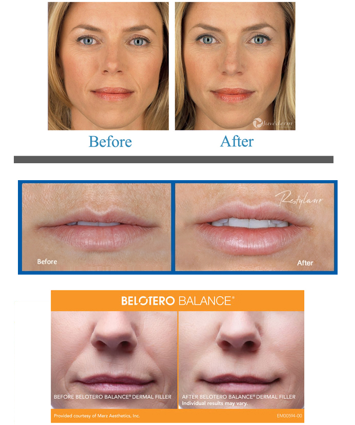 Dermal Fillers - Center for Cosmetic and Clinical Dermatology