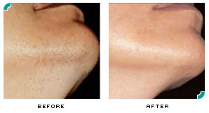 Laser Hair Removal Center For Cosmetic And Clinical Dermatology